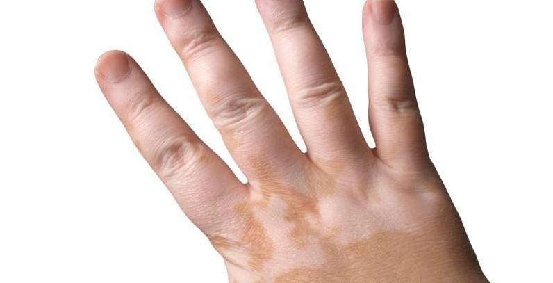 Можно ли вылечить витилиго? – симптомы, лечение, диагностика